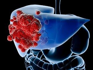 Вторичный рак печени