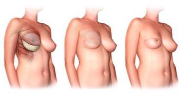Восстановление молочной железы